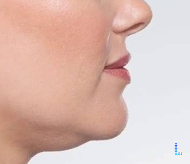 Best Aesthetic  Double Chin Removal in Lahore