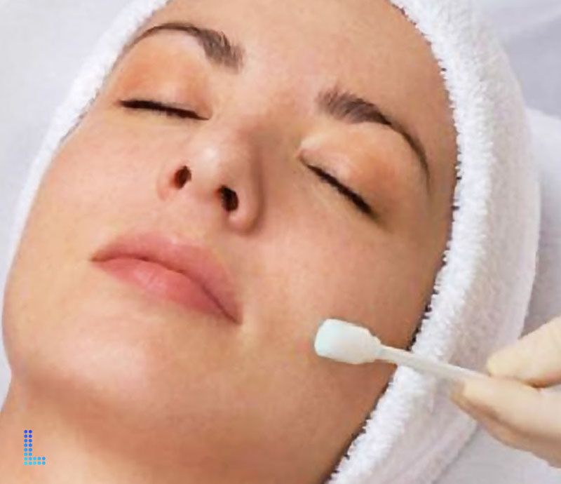 Best Chemical Peels for Skin Rejuvinationin Lahore