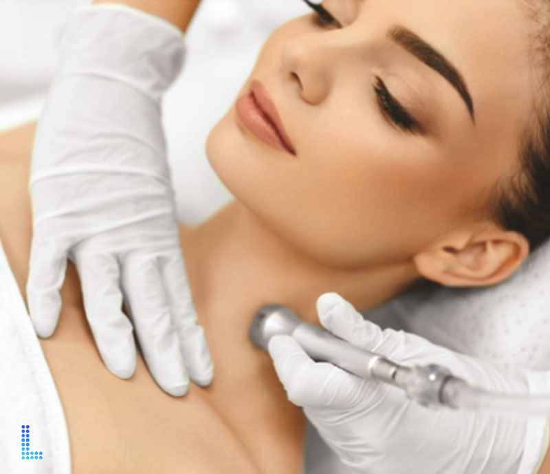 Best Dermabrasion acne in Lahore