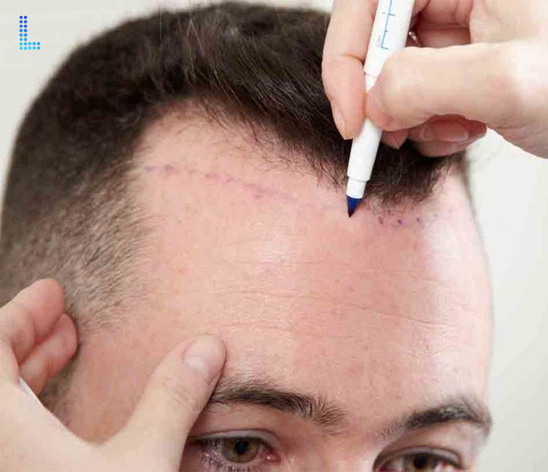 Best  Surgical Hair Transplants Surgery FUT in Lahore