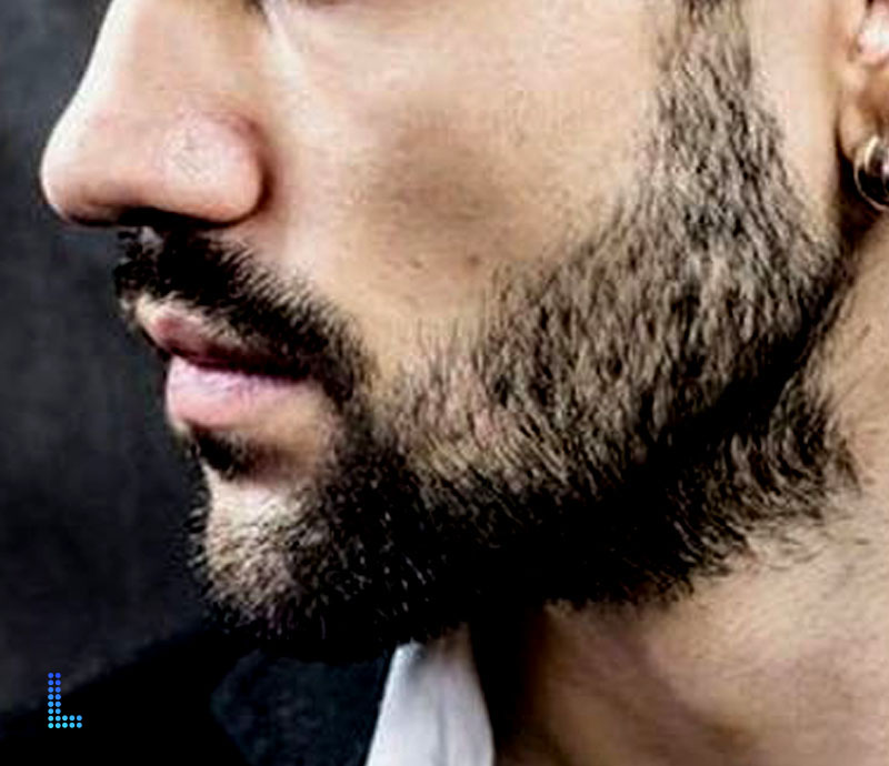 Best Beard Hair Transplant in Lahore