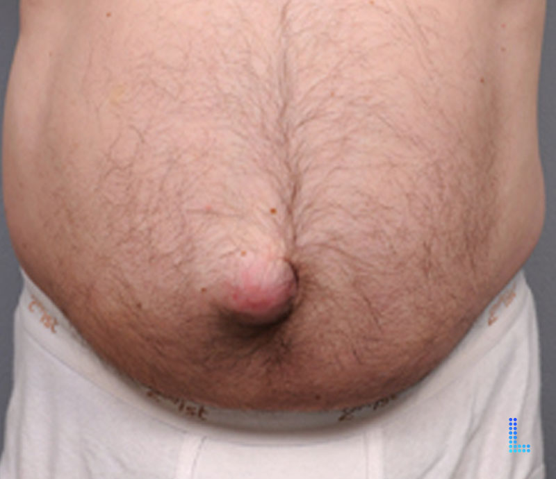 Best Tummy tuck hernia in Lahore