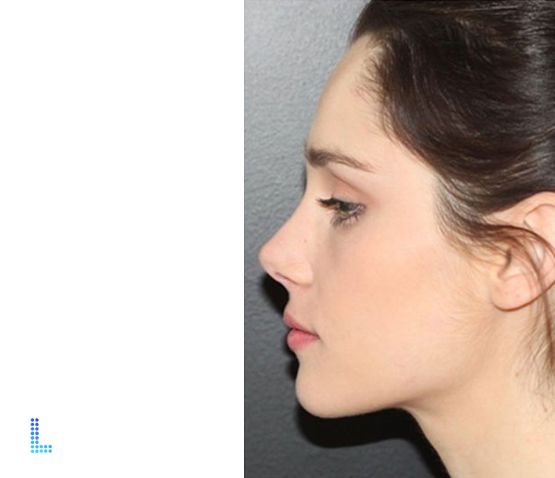 Best Aesthetic Nose Reshape  in Lahore