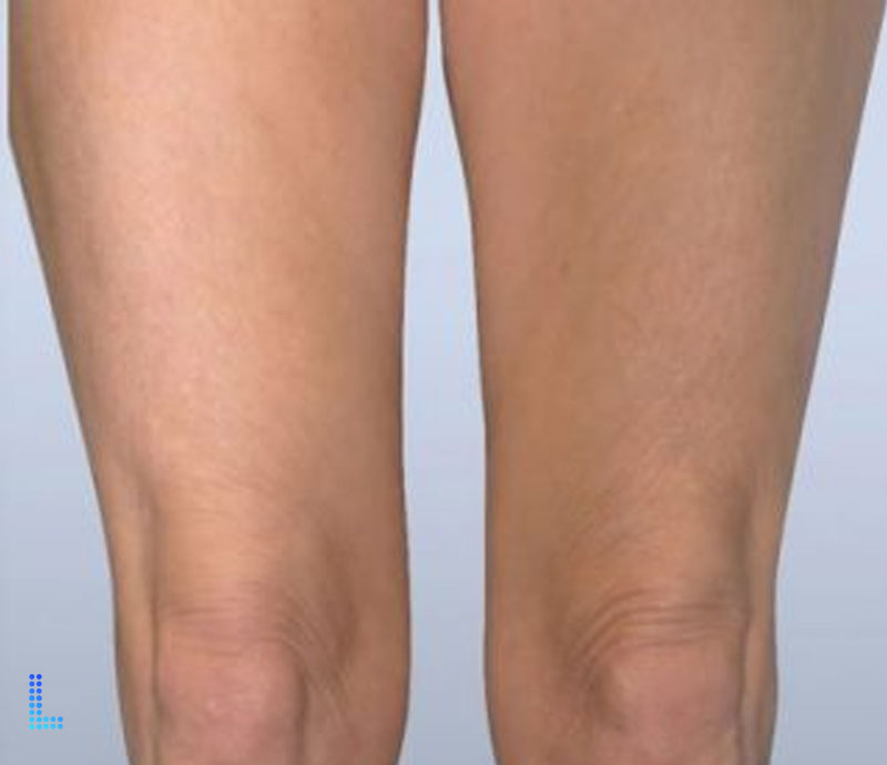 Best Cosmetic Thigh Lift Surgery  in Lahore